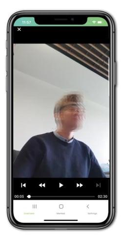 Seizure video